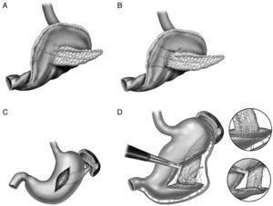 A) anastomosis ducto-mucosa y colocación de un drenaje transanastomótico; B) invaginación de unos 2-3cm del remanente pancreático a través de la cara posterior gástrica; C) invaginación del remanente pancreático a través de la cara posterior gástrica y anastomosis pancreaticogástrica a través de una gastrotomía anterior; D) pancreaticogastrostomía con un segmento de estómago después de una partición gástrica.