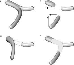 Técnica de reconstrucción vascular en el caso de una resección de un segmento de la vena mesentérica superior y de la unión entre la vena esplénica y la vena porta: A) anatomía esplenomesentérica-porta. B) movilización de la vena mesentérica superior en sentido craneal y de la vena porta en sentido lateral. C) la reconstrucción mesentérico-portal es casi siempre factible pero la vena esplénica no puede anastomosarse al segmento vascular reconstruido. D) la reconstrucción vascular de la vena esplénica puede hacerse con la colocación de un injerto vascular.