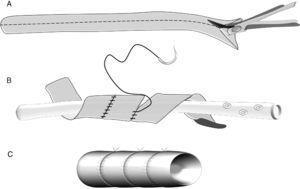 Construcción de un injerto venoso en espiral: A) injerto de vena safena que se abre longitudinalmente. B) reconstrucción de la luz venosa con anastomosis en espiral sobre un tubo de drenaje. C) injerto en espiral.