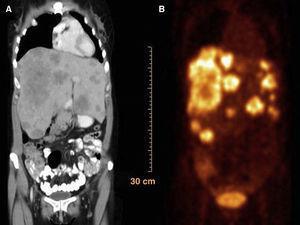 A) Imagen tomográfica que demuestra parénquima hepático reemplazado por lesiones compatibles con metástasis. B) PET que confirma hiperactividad metabólica múltiple en hígado.