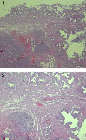 Tejido pancreático ectópico en cuello vesicular. Hematoxilina eosina 40x.