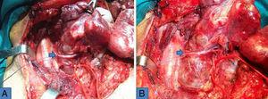 Relación compleja de la arteria tiroidea inferior (flecha), de un bocio posterior dependiente del tubérculo de Zuckerkandl y del nervio recurrente antes (A) y durante (B) la movilización de la porción endotorácica y retrovascular.