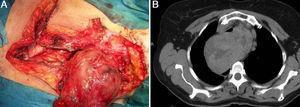 Bocio recidivado endotorácico retroesofágico que precisó un acceso combinado cervical, mediastínico y pleural derecho. A) Imagen radiológica. B) Imagen quirúrgica.