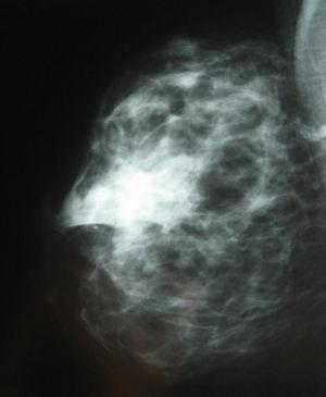 Imagen mamográfica del gel de plaquetas.