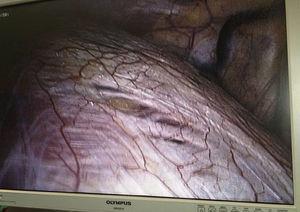 Orificios en diafragma.
