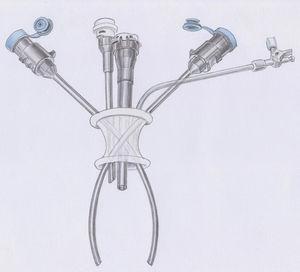 La tecnología de acceso único da Vinci para la colecistectomía asistida por robot.