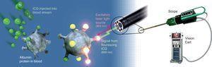 El sistema Firefly en da Vinci para cirugía robótica guiada por fluorescencia.