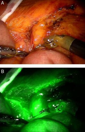 Disección robótica de un ganglio preaórtico durante una resección sigmoidea por neoplasia: A) vista endoscópica estándar; B) vista mediante Firefly que muestra la captación de la tinción por parte del ganglio.