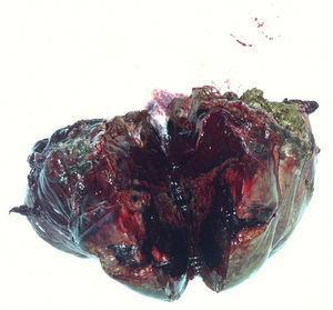 Imagen macroscópica de la lesión.