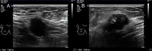 A) En prolongación axilar derecha se observa adenopatía de 19mm con pérdida del hilio graso y de aspecto infiltrativo. B) En la unión de cuadrantes de la mama derecha se aprecia nódulo irregular, mal definido, BI-RADS-IV.