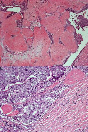 A) Se aprecia intensa atipia celular y frecuentes figuras de mitosis (H-E 20X). B) En la periferia de la lesión, se observa infiltración del estroma circundante, que confirma el diagnóstico de carcinoma ductal infiltrante (H-E 10X).