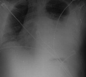 Radiografía tórax a las 48h. Rápida progresión con velamiento de 2/3 del hemitórax izquierdo.