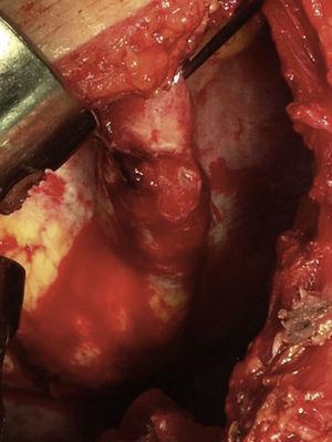 Laceración diafragmática con hemorragia activa tras evacuar hemotórax.