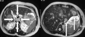 Resonancia magnética de abdomen superior donde las flechas indican un área de necrosis central del páncreas (derecha) y lesiones de metástasis en el hígado (izquierda).