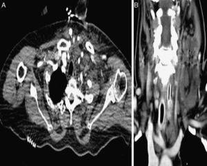 A) Tomografía computarizada del cuello con edema y trabeculación cervical izquierda a su ingreso. B) Tras administrar factor estimulador de las colonias de granulocitos, con formación de los abscesos cervicales profundos.