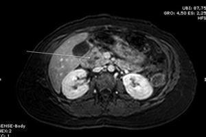 Imagen de RNM (secuencia T1) en la que se observa lesión quística hipointensa en cabeza pancreática.