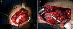 a) Detalle de la reinserción diafragmática apoyada en prótesis de goretex. b) Barra de STRATOS por encima de la mioplastia.