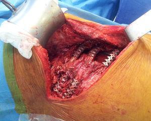 Fijación de fracturas costales con sistema STRACOS.