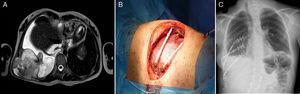 a) RMN torácica preoperatoria donde se observa lesión de grandes dimensiones. b) Visión de la prótesis flexible y ya colocadas 2 barras de STRATOS. c) Radiografía de tórax de control del postoperatorio. Obsérvese como en este caso colocamos 2 de las barras en posición cruzada.