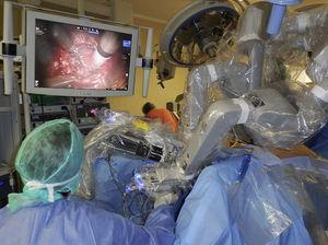 Robot anclado en puerto transanal sobre cadera izquierda del paciente.