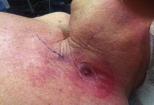 Esofagostomía y sutura de Prolene® que referencia el polo superior del tubo gástrico.