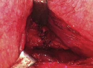 Imagen intraoperatoria de la anastomosis esofagogástrica.