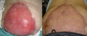 A) Integración de la malla y granulación de la herida a las 6 semanas. B) Injerto de piel parcial y epitelización.