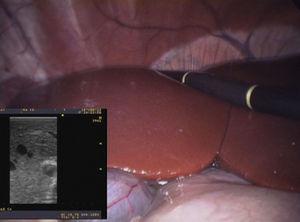 Ecografía intraoperatoria durante resección hepática totalmente laparoscópica en modelo ovino, en un pabellón simulado.
