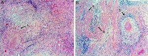 A) Parénquima hepático con granulomas constituidos por células epitelioides y linfocitos, con centros de necrosis caseosa y abscesificación (a) (hematoxilina-eosina5×). B) Pared de vesícula biliar con tejido fibroconectivo que muestra invaginaciones del epitelio de superficie, conformando senos de Rokitansky-Aschoff (a). Granuloma compuesto por células epitelioides, con células gigantes multinucleadas tipo Langhans, linfocitos y centros con necrosis caseosa (b) (hematoxilina-eosina5×).