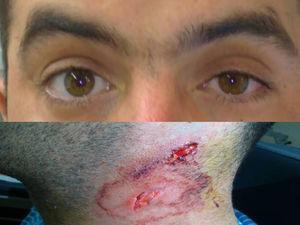 Imagen superior: anisocoria con miosis del ojo izquierdo y ptosis ipsilateral. Imagen inferior: lesiones cervicales incisocontusas.