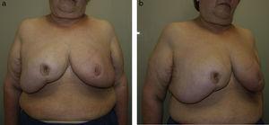 Redundancia de la envoltura cutánea tras mamoplastia oncorreductora en gigantomastia.