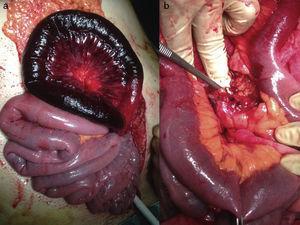 Hallazgos intraoperatorios. Isquemia de origen venoso (a) y trombosis venosa en la sección mesentérica (b).