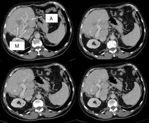 TAC de inicio que muestra la metástasis en segmento IV en contacto con vena porta izquierda y englobando la rama portal de dicho segmento, una de las metástasis en segmento II (M) y un angioma (A).
