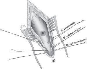 York-Mason: esquema de apertura parasacrocoxígea, transesfintérica.