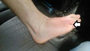 Primer día: pápula violácea entre el 4.° y el 5.° dedo del pie (donde muestra la flecha), con celulitis en el dorso del pie.