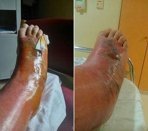 Entre el 4.° y el 5.° día: se hace más importante el grado de inflamación y de edema, con progresión de la celulitis hasta la pierna, y con la aparición de grandes ampollas de contenido seroso y una central en el dorso del pie hemática.