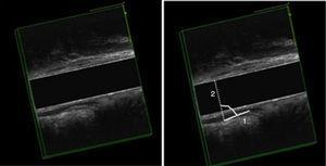 EEAD, corte sagital del canal anal medio y alto. Izquierda: reposo; Derecha: esfuerzo. Medida del ángulo anorrectal: Anismo. 1) línea en la porción interna del esfínter externo y puborrectal y 2) línea perpendicular al canal anal.