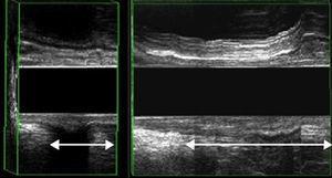 EEAD: Medida del descenso perineal. Izquierda: descenso normal (< 2cm); Derecha: descenso patológico.