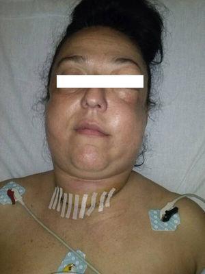 Fotografía de la paciente tras episodio brusco de tos, con inflamación de cara y cuello progresiva.