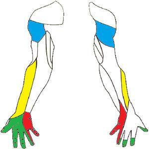 Inervación sensitiva del miembro superior. Se han marcado los troncos nerviosos con lesiones referidas en la literatura. Nervio musculocutáneo (borde lateral del antebrazo), nervio axilar (área del hombro), nervio mediano (palmar lateral) y nervio cubital (palmar y dorsal medial).