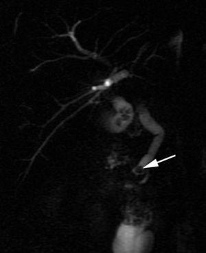 Imagen de colangiorresonancia con litiasis de 5mm (flecha).