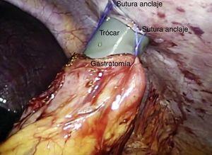Introducción del trócar en el estómago.
