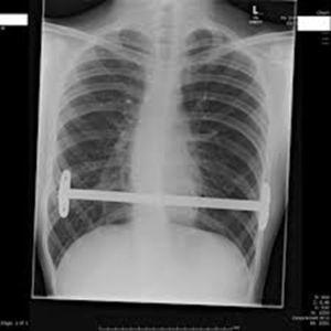 Radiografía de control postoperatorio.