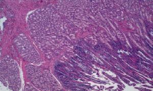La mucosa engrosada de la papila menor duodenal presenta hiperplasia severa de glándulas de Brunner.