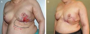 Colgajo axial toracoabdominal. A. Necrosis del polo inferior de la mama izquierda después de una mamoplastia vertical por cáncer de mama. B. La colocación de un colgajo axial toracoabdominal permitió el inicio de la radioterapia postoperatoria.