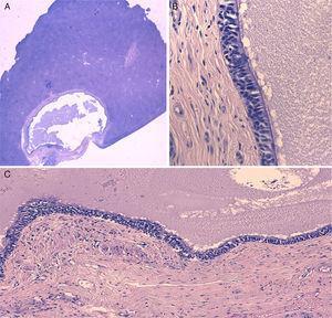 A) Imagen microscópica del QHC rodeado por parénquima hepático normal (hematoxilina-eosina). B) Detalle de la pared del quiste mostrando el epitelio ciliar seudoestratificado y la capa de músculo liso subyacente (hematoxilina-eosina ×400). C) Detalle de la pared del quiste mostrando el epitelio ciliar seudoestratificado y las capas subyacentes características (hematoxilina-eosina ×100).