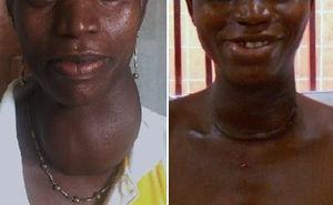 Paciente con bocio multinodular, antes y después de la cirugía (tiroidectomía subtotal bilateral).