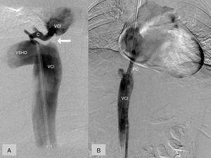 Cavografía. A) Diagnóstica. Obstrucción completa VCI (flecha), VSH derecha dilatada (VSHD), colateral (C) que conecta la VSH derecha con la VCI por encima de la estenosis. B) Terapéutica. Prótesis cubierta (PC) conectando los segmentos preestenótico y postestenótico de la VCI.