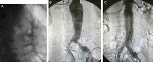 A) Imagen de control tras la colocación de stent a nivel de colon descendente. B) Imagen intraoperatoria de AAA infrarrenal. C) Imagen intraoperatoria tras la realización de EVAR con endoprótesis aorto-bi-ilíaca con correcta exclusión aneurismática.