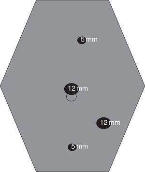 Colocación de los trocares para el abordaje laparoscópico de la Enfermedad de Crohn ileocecal.